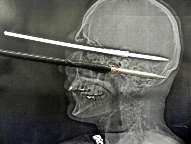 Bruno Coutinho - Harpoon in eye Xray