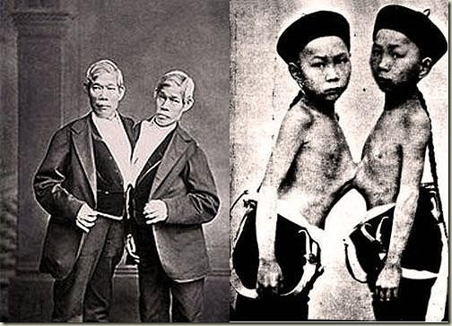 Chang And Eng - Origianl Siamese Twins - Freak Show