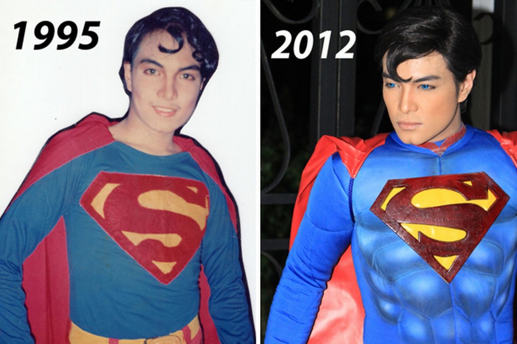 Herbert Chavez - Superman - Surgery - Before and After